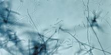 Image de microscopie d'un Streptomyces. Ces bactéries filamenteuses produisent naturellement de très nombreuses molécules chimiques et sont responsables de la production de plusieurs antibiotiques. Les espèces bactériennes marines sont aussi à l'origine de molécules inédites, venant enrichir la famille des antibiotiques existant. © CDC, Wikimedia Commons